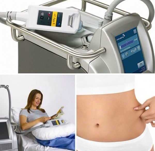 COOLSCULPTING 2 Coolsculpting na INTI